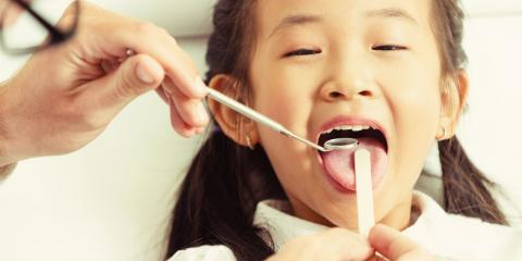What You Should Know About Dental Sealants, Ewa, Hawaii