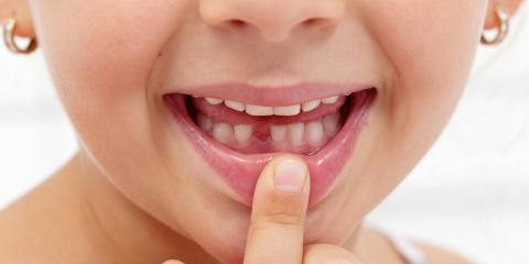 Should You Help Your Children Pull Their Loose Baby Teeth?, Honolulu, Hawaii