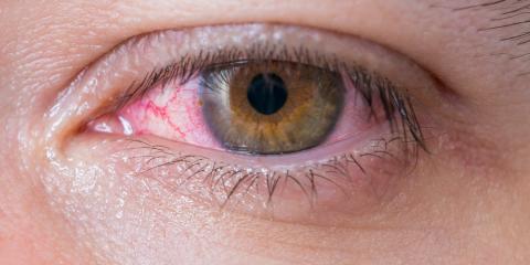 What Is Pink Eye? Honolulu Eye Doctor Explains the Details, Ewa, Hawaii