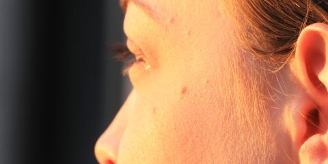 Treat Eczema & Other Skin Conditions With Naturopathic Medicine From Island Wellness Center, Honolulu, Hawaii