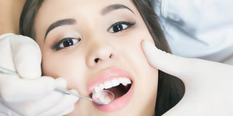 What Should You Know About Having a Tooth Extraction?, Honolulu, Hawaii