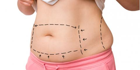 Vaser Lipo: a Tummy Tuck Alternative That's Less Invasive & Very Effective, Houston, Texas