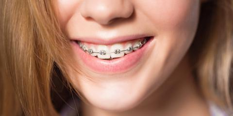 What's the Best Age to Get Braces?, Merrill, Wisconsin