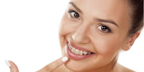 How to Care for Your Braces, Columbia, Kentucky