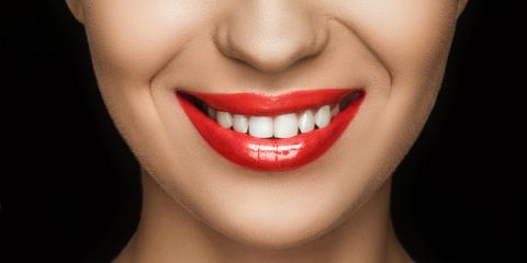How to Properly Care for Your Veneers, Somerset, Kentucky