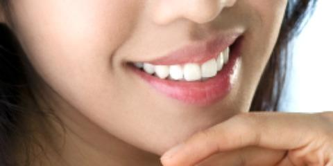 Monroe's Expert Dentists Explain All You Need to Know About Porcelain Veneers, Monroe, New York