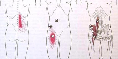 Iliopsoas Trigger Points Cause Back Pain, Lincoln, Nebraska