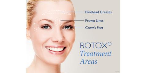 3 Advantages of Botox® Injections, West Orange, New Jersey