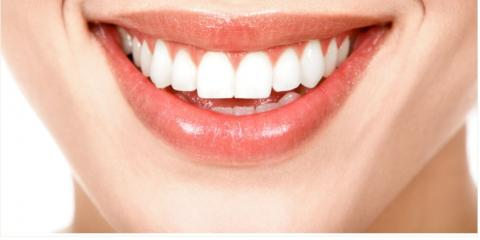 Avoid Cavities With These Mouth-Healthy Snack Suggestions From You Should Smile Dental, ,