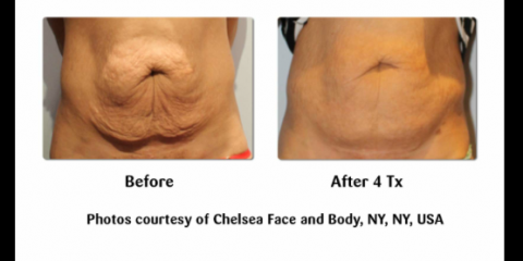c9975ba9df Offers a Non-Invasive Way to Treat Sagging Skin After Excessive Weight Loss  With Viora! July 13, 2014