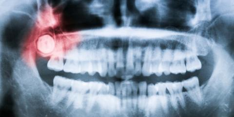 What Is an Impacted Tooth & How Is It Treated?, Martinsburg, West Virginia
