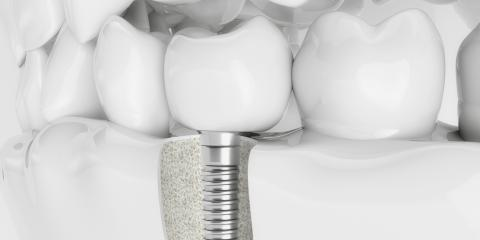 Local Implant Dentistry Explains The Benefits of Getting Dental Implants, Anchorage, Alaska