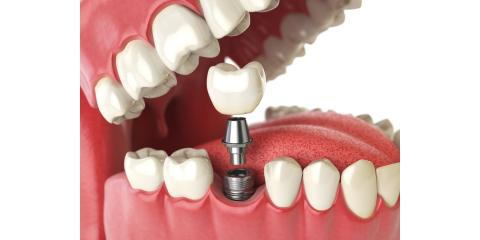 Why Dental Implants?, Middlebury, Connecticut