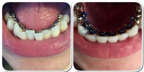 How Local Dentists Offer the Best Orthodontic Treatment in Anchorage, Anchorage, Alaska