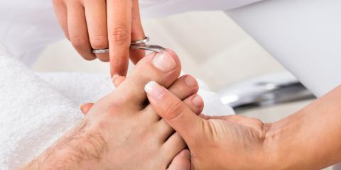 3 Treatments for Ingrown Toenails, Gates, New York