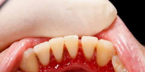 Benefits of Pinhole Gum Therapy, the Latest Advancement in Dental Care, Anchorage, Alaska