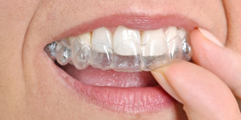 4 Ways Invisalign® Braces Will Fit Into Your Adult Life, Fairfield, Ohio