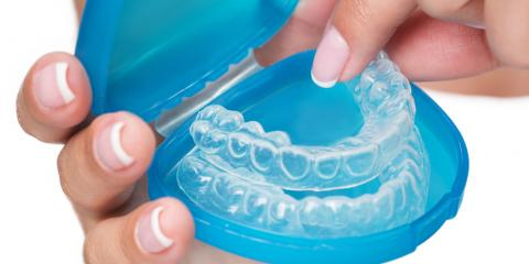 Guide to the Invisalign® Treatment Process, Potomac, Maryland