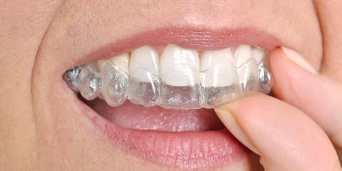 Highland Dental Busts 3 Myths About Invisalign, Richmond, Kentucky