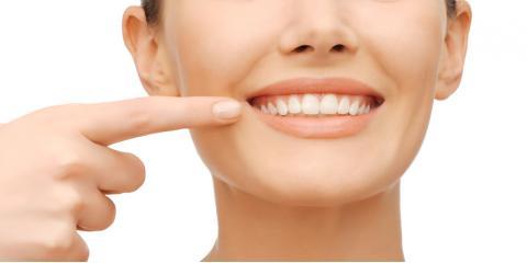 Branson Dental Center Answers 4 Invisalign® FAQs, Branson, Missouri