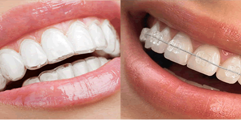 Invisalign vs Traditional Braces: Honolulu Cosmetic Dentistry Experts Weigh In, Honolulu, Hawaii