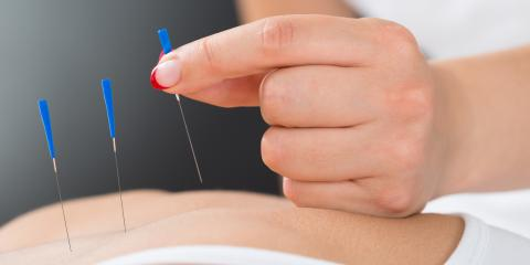 Common Questions About Acupuncture Before an Appointment, Issaquah Plateau, Washington