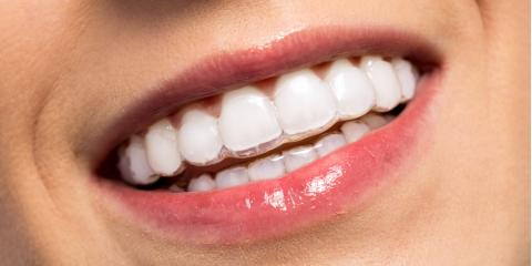 Top 4 Facts About Invisalign® You Need to Know, Issaquah Plateau, Washington