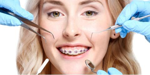 4 Common Reasons People Need Braces , Jacksonville, Arkansas