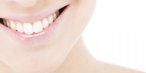 Cosmetic Dentistry Specialists Share 3 Advantages of Teeth Whitening, Kalispell, Montana