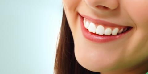 5 Benefits of Dental Veneers, Middlebury, Connecticut