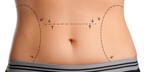 What Is the truSculpt® Body Sculpting Treatment?, Kailua, Hawaii