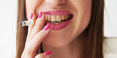 A Kalispell Dentist Shares 4 Common Causes of Tooth Discoloration, Kalispell, Montana