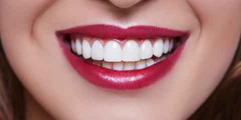 Kamuela Dentist Discusses the Pros & Cons of Dental Veneers, South Kohala, Hawaii