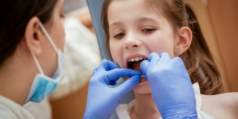 3 Bad Habits That Cause Tooth Misalignment in Children, Ewa, Hawaii