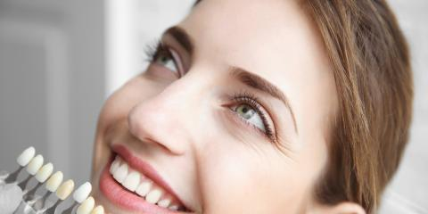 3 Important Advantages of Cosmetic Dentistry, Springdale, Ohio