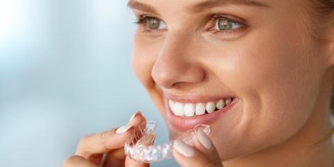 3 Surprising Benefits of Straight Teeth, Kenai, Alaska