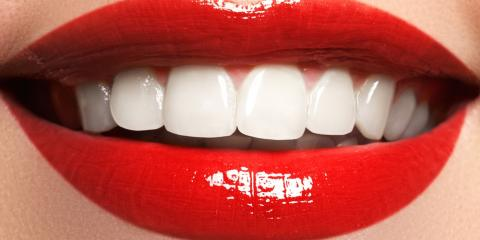 5 Basic Types of Cosmetic Dentistry Procedures, Kenton, Ohio