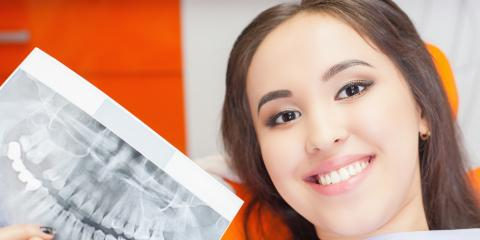 4 Ways to Determine if Dental Implants Are Right for You, St. Charles, Missouri