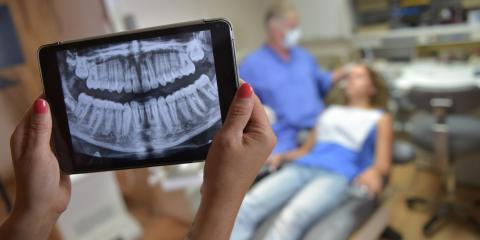 Why Do Kids' Dentists Require X-Rays? , Anchorage, Alaska