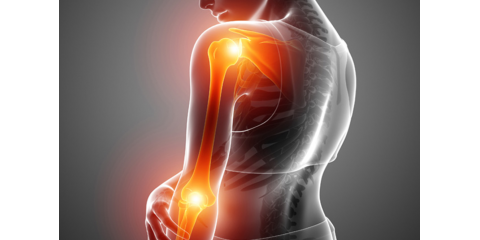 3 Sports Injuries Chiropractic Adjustments Can Help Treat, Elizabethtown, Kentucky