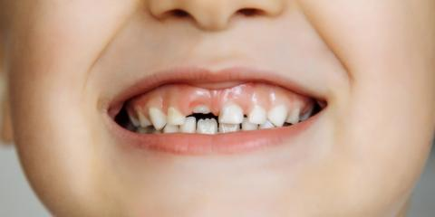 Local Pediatric Dentist Explains the Importance of Caring for Baby Teeth, Kodiak, Alaska