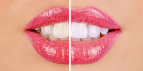 What is Cosmetic Dentistry?, Somerset, Kentucky