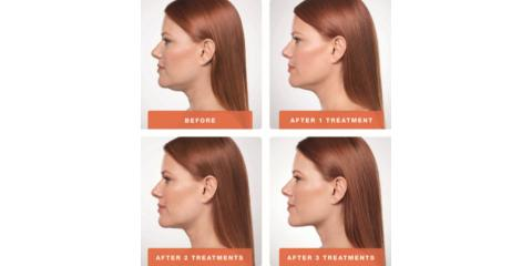 5 Benefits of Kybella, Homer, Alaska