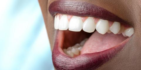 What Causes Staining & How Can Teeth Whitening Help?, La Crosse, Wisconsin