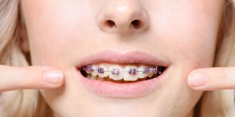 5 Health Benefits of Having an Orthodontist Straighten Your Teeth, La Crosse, Wisconsin