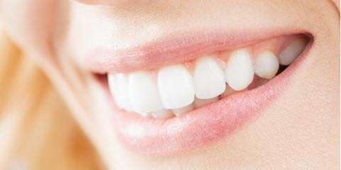 3 Benefits of Teeth Whitening for a Radiant Smile, Rice Lake, Wisconsin
