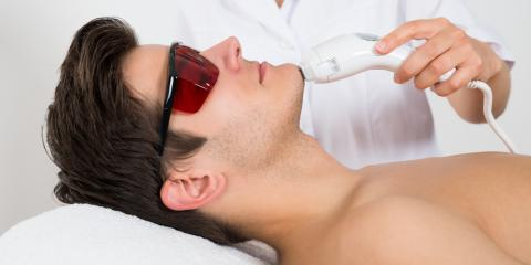 3 Benefits of Men's Laser Hair Removal, Milford, Connecticut