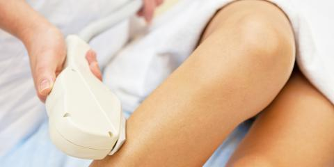 3 Top Benefits of Laser Hair Removal, Winchester, Virginia