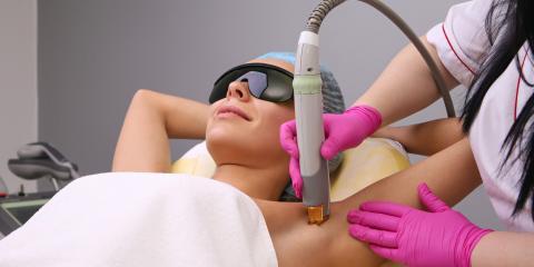 5 Tips for Preparing for Laser Hair Removal, Anchorage, Alaska