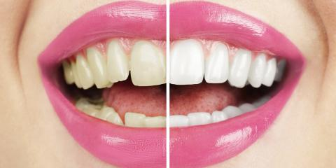 Which Is the Right Teeth Whitening System for You?, Stamford, Connecticut
